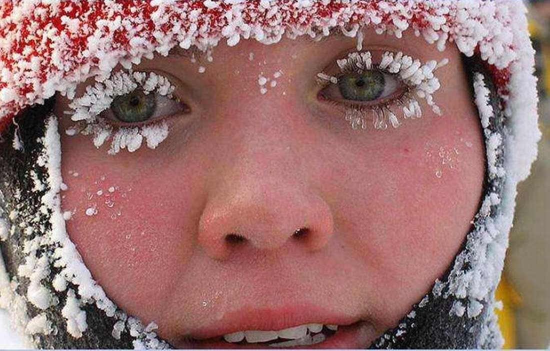 Что нужно делать при обморожении